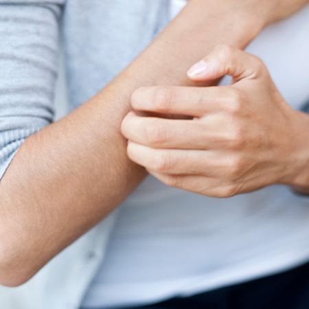 Anti-itch Treatments